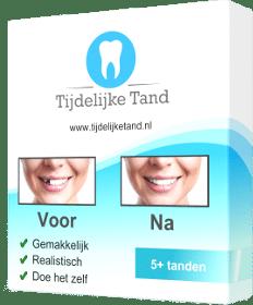 tijdelijke tand