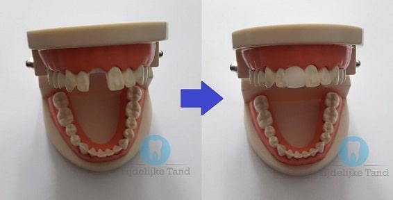 tijdelijke tand voor en na