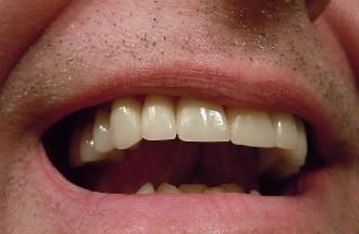 Nep tanden… waarom niet?