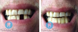 ervaring tijdelijke tand