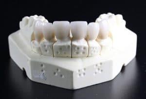 tand zelf maken