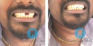 voor na tijdelijke tand